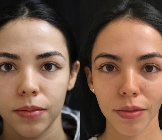 Vampire Facial Treatment